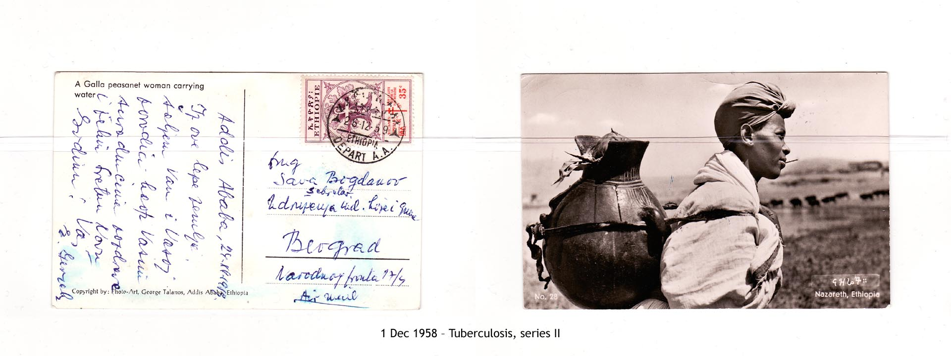 19581201 – Tuberculosis, series II